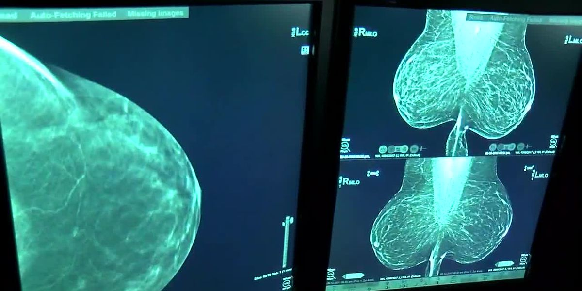 MedWatch: Doctor discusses importance of yearly mammograms