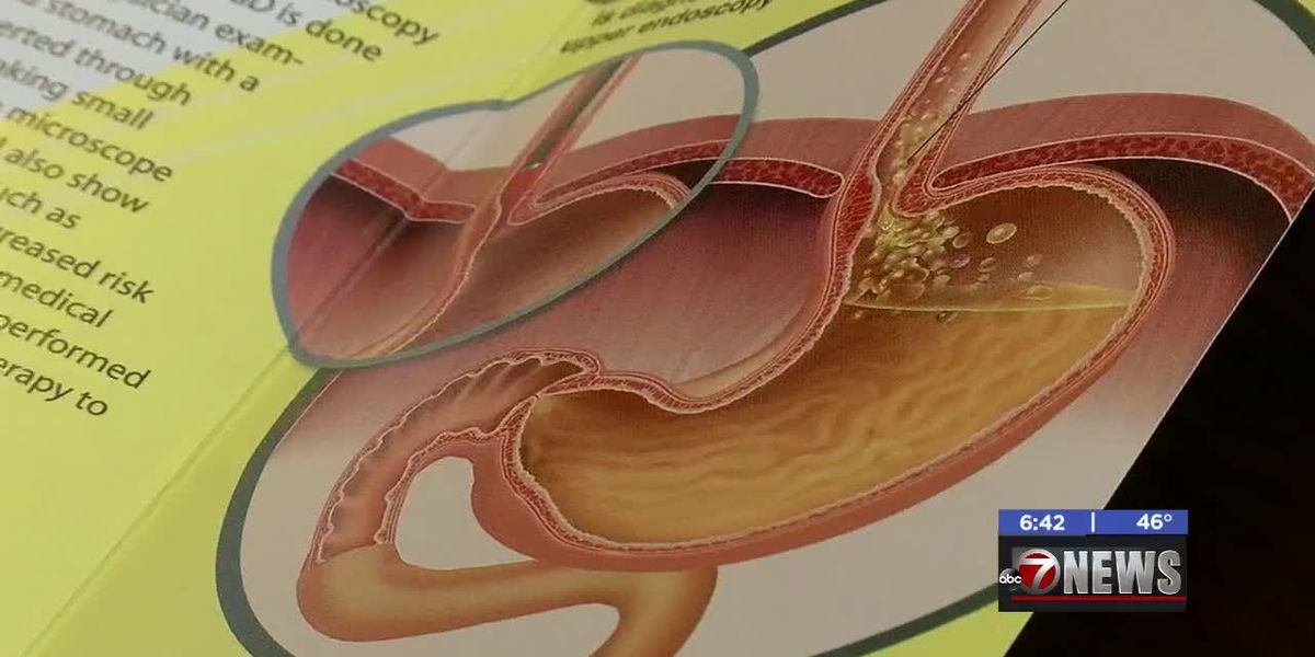 MedWatch: Health official gives acid reflux prevention tips