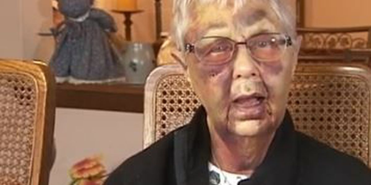 Elderly woman severely injured in home invasion