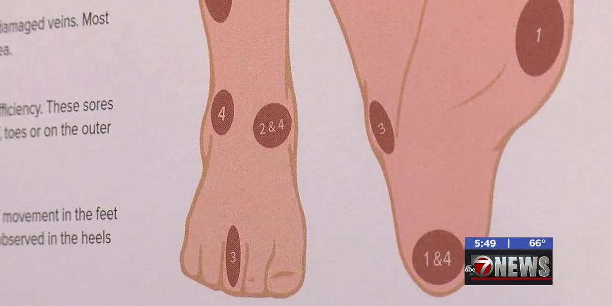 Medwatch: How to prevent foot ulcers